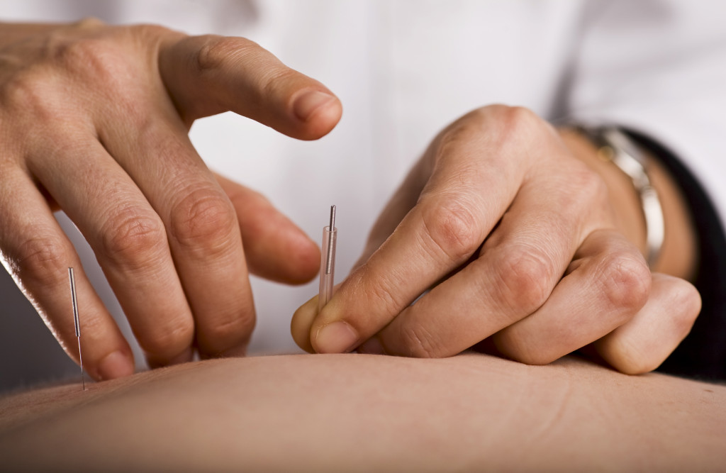 Dr Gary Danchak- Acupuncture Reno Treatment and Patient